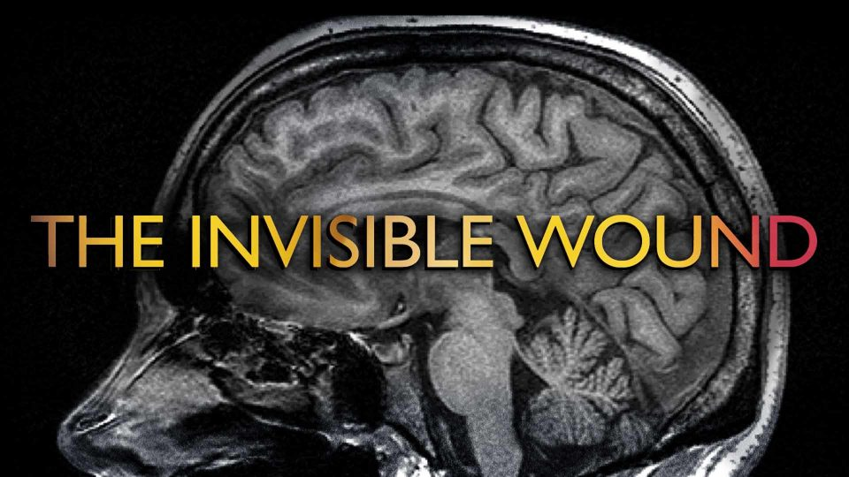 The Invisible Wound